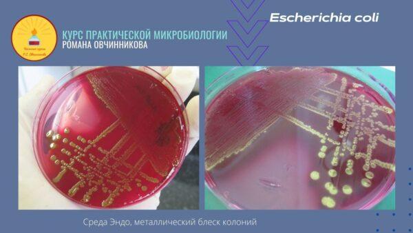 Е-коли_Мини-аталас бактериальных колоний