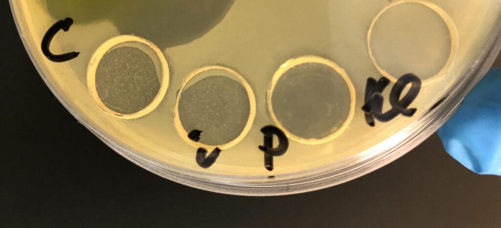 определение чувствительности к бактериофагам